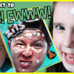 Kids play with zits pimple popping toy and react to it.